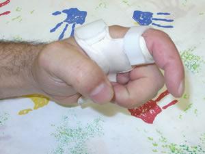orthese-doigt-sur-mesure